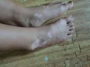 定西哪里治疗白癜风好?脚部长白癜风应该怎么治疗